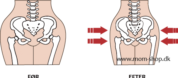 Hvorfor bruge hoftebælte efter fødslen?